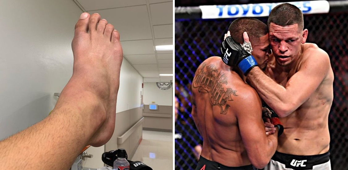 Anthony Pettis złamał stopę